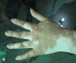 患者对白斑治疗要认识什么步骤