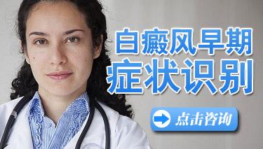 初夏白癜风病发有哪些特点症状
