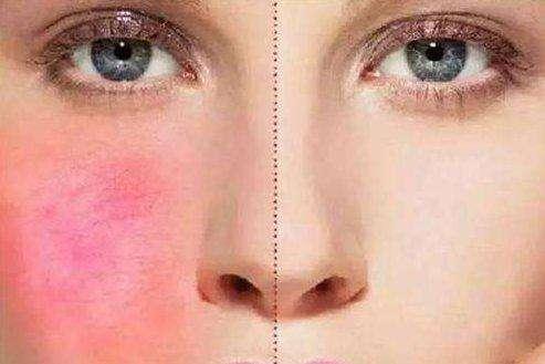 有哪些因素导致女性皮肤出现白斑