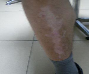 腿部白癜风发病的原因有哪些